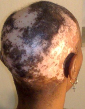 Scalp Damage by a relaxer