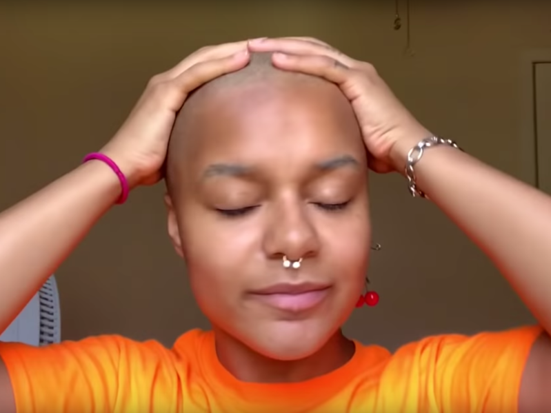 Bad head after relaxing and bleaching hair